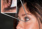 """چند عامل اصلی برای ممنوعیت بکاربردن  لنزهای طبی"""""""