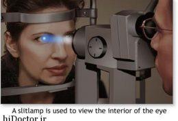 بیماری پارکینسون را با استفاده از نور می توان تشخیص داد