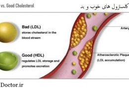 اچ دی ال HDL خوب است یا ال دی ال LDL؟