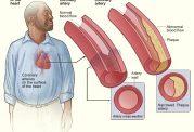 زیانها و شیوه های کاهش کلسترول