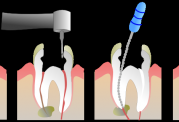 آیا میدانستید دندان نداشتن یعنی  نقص عضو