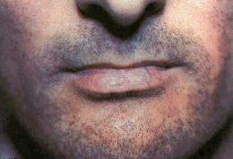 بیماری لیکنپلان ، معالجه  مشکل ولی قابل کنترل دارد