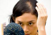 درمان ریزش مو با بیست گیاه