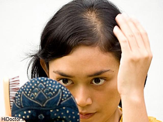 درمان گیاهی ریزش مو در زنان