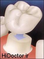 چه موقعی دندان ها احتیاج به روکش دارد؟