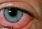 از علائم و نشانهها تا درمان قرمزی چشم