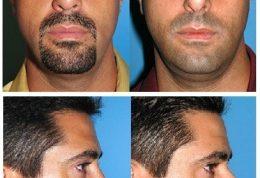 عکس تفاوت های ظاهری قبل و بعد از عمل جراحی زیبایی بینی