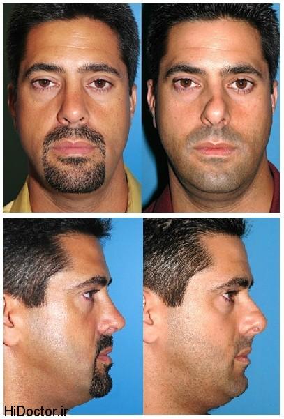 نوجوانان عکس تفاوت های ظاهری قبل و بعد از عمل جراحی زیبایی بینی