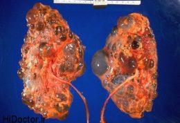 14 تا 21 روز پس از تولد بهترین وقت برای تشخیص این بیماری