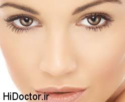 انواع لکه های روی پوست را بشناسید