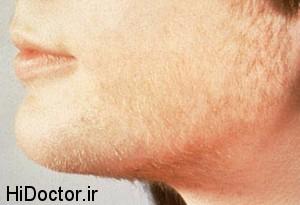هيرسوتيسم   رشد بيش از حد موها در صورت و بدن زنان