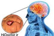با این نشانه ها مبتلا به تومورمغزی هستید