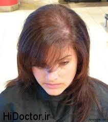 هنگام ریزش مو اینگونه بخورید