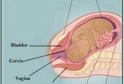 خطر چسبندگی جفت در زنان باردار