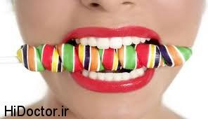 چاره دندان بد رنگ