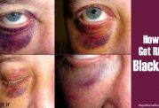 چگونه کبودی چشم ناشی از ضربه را سریع درمان کنیم