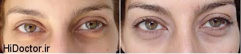 کبودی زیر چشمها هم درمان طبیعی دارد