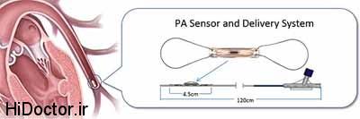 بیماران دچار نارسایی قلبی  فشار خون ریوی  را چگونه  در منرل کنترل کنند؟