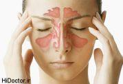 سینوزیت قارچی چه علامتی دارد + درمان