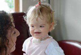چگونگی زندگی این کودک بدون بینی