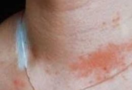 واکنشهای آلرژیک به بدلیجات و درمان آن