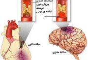 ژن PIA2  ایجادکننده سکته مغزی و قلبی