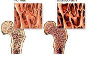هشت راهکار مفید برای افزایش تراکم استخوان
