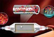 برای فیلتر کردن خون از عفونت یک شیوه جدید ابداع شد