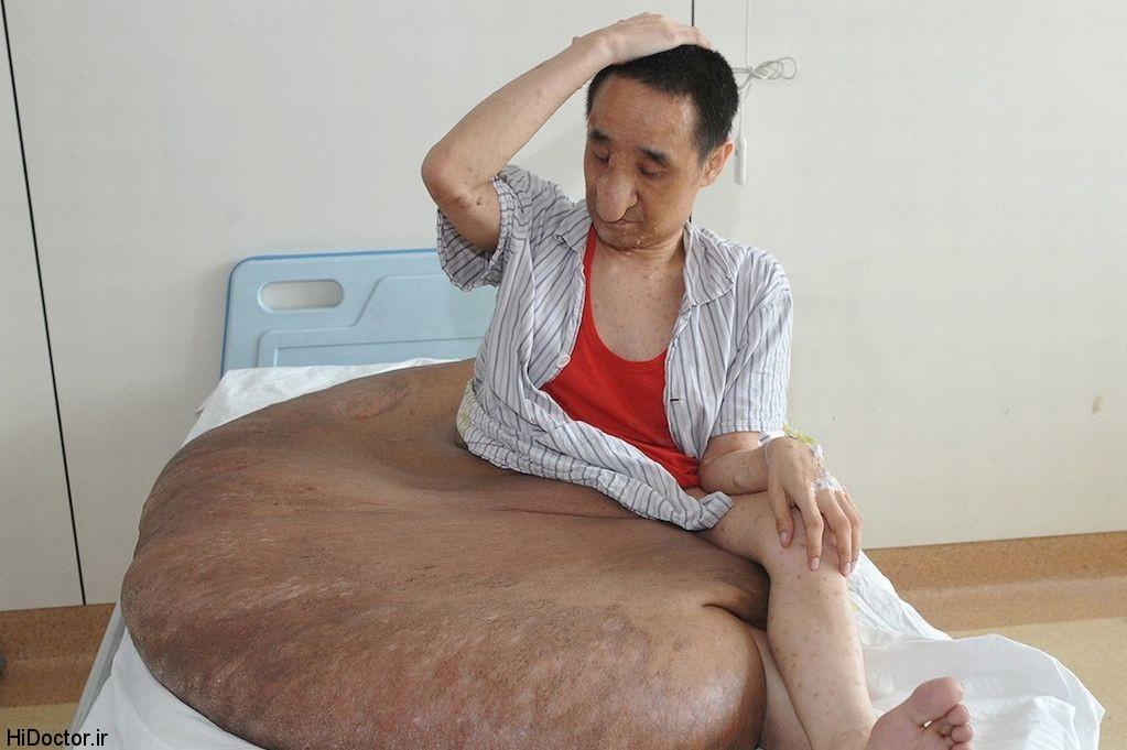 بزرگترین تومور جهان با وزن صد و ده کیلو