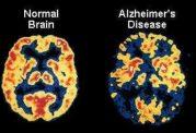بهبود آلزایمر با روزه