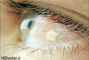 اطلاعاتی کامل درباره کاشت نگین چشم و عوارض آن