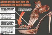 تغییر محورلگن و ستون مهرهها با این کفش ها