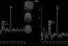 خواب کمتر مساوی با توان مغزی کمتر