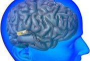 بازگرداندن حافظه با یک ایمپلنت مغزی