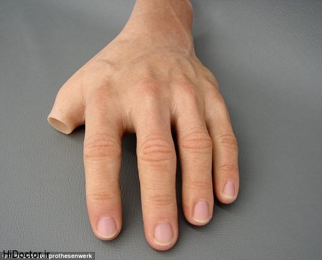 پروتز سیلیکونی دست