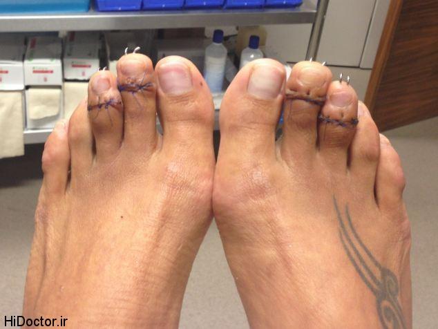 عمل زیبایی انگشتان پا