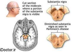بکارگیری پژوهشگران از داروهای ضدالتهابی برای از بین بردن پارکینسون
