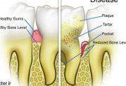 هر آنچه که باید درباره  بیماریهای بافت نگهدارنده دندان و سلامت عمومی بدانید