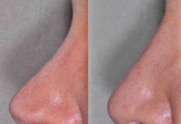 عارضه غیرقابل علاج پس از عمل جراحی زیبایی بینی
