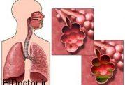 برای مسمومیت های تنفسی چه اقداماتی باید انجام دهیم