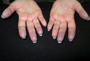 دلایل کبود شدن پوست بدون ضربه