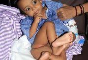 گزارش تصویری از ناهنجاری در بدو تولد
