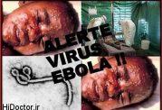 با رعایت این موارد از ابولا نهراسید