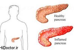 جلوگیری از  پانکراتیت حاد با انسولین