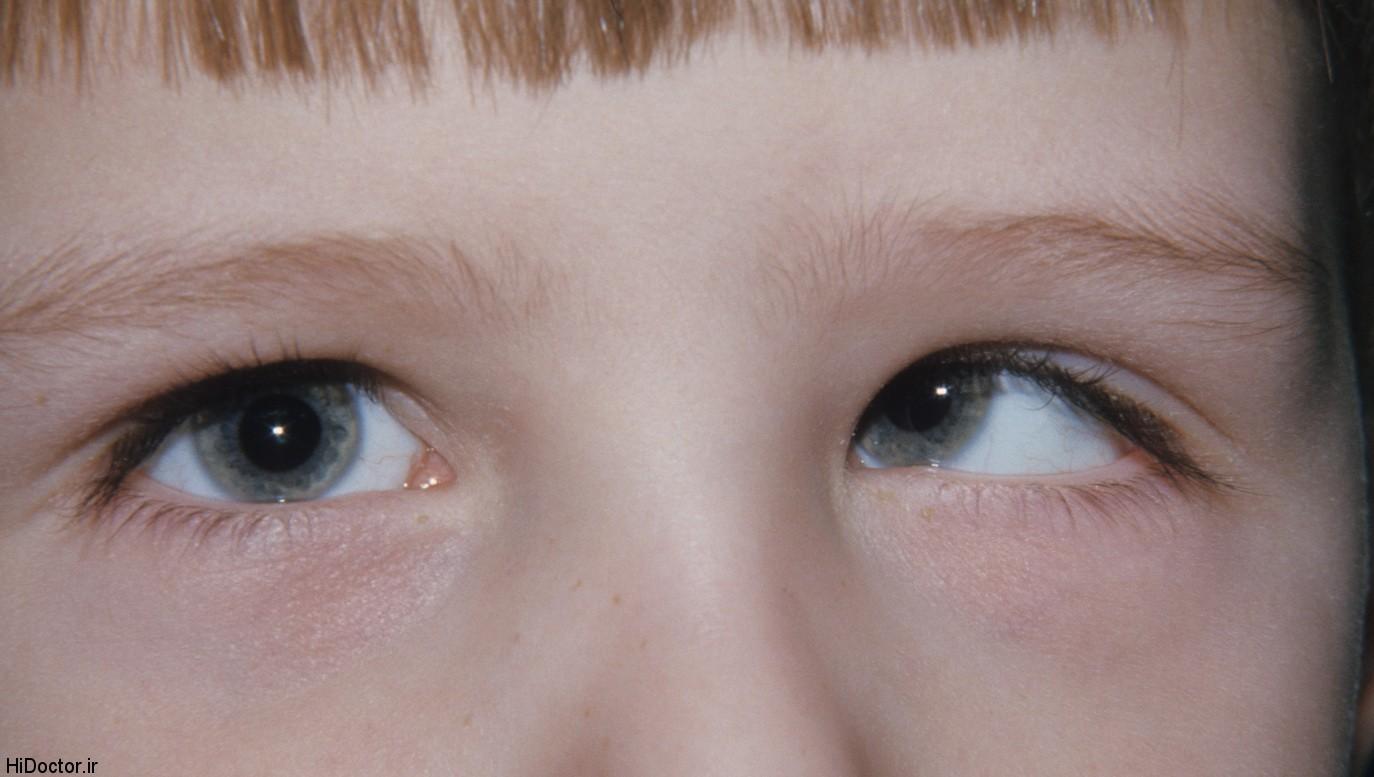 پیدایش انحراف چشم در اطفال و درمان آن