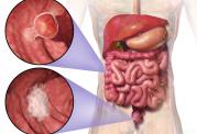 تنقلات ایجاد کننده سرطان روده