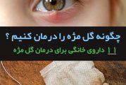 11 درمان طبیعی برای گل مژه چشم