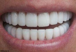 اولین دندان واقعی تولید شد