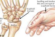 پیشگیری از شکستگی این ناحیه از بدن با این توصیه ها