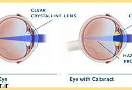 درمان ناراحتی مادرزادی چشمی با لنز